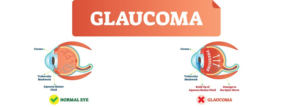 Glaucoma Overview. Signs, Testing, and Treatment. Important Information You Should Know